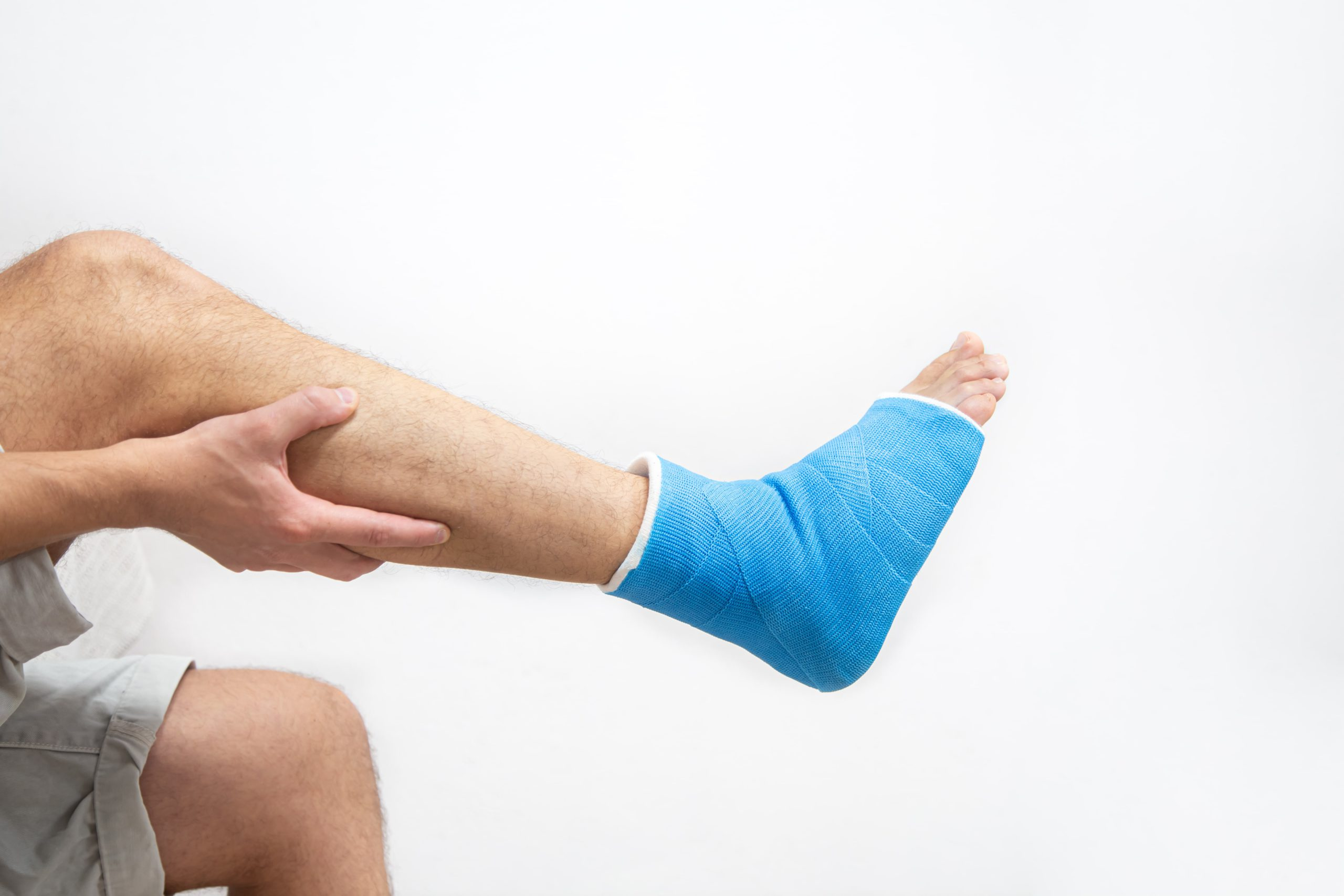 CBD For Fractures